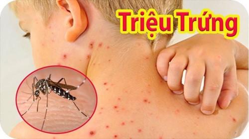 Những điều cần tránh khi đang mắc bệnh sốt xuất huyết
