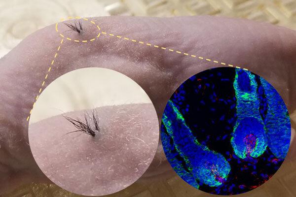 Nang tóc được phát triển từ tế bào gốc