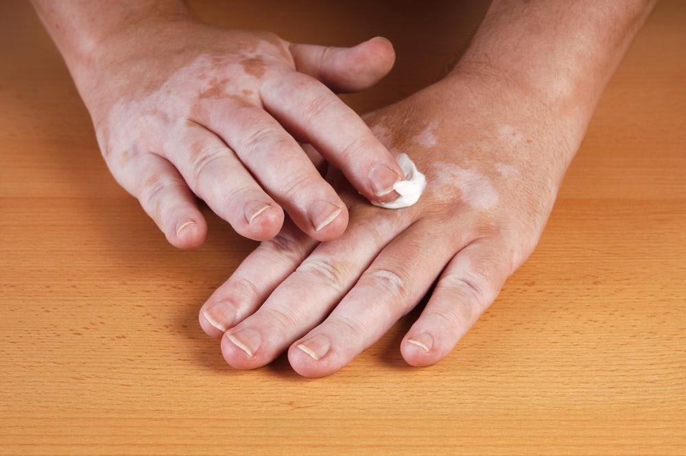 Thuốc điều trị bệnh về máu được sử dụng để chữa bệnh bạch biến