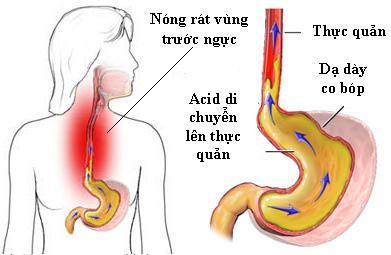 10 dấu hiệu của bệnh trào ngược dạ dày thực quản